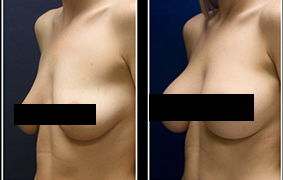 how-to-make-your-breasts-grow-faster-620x180-1