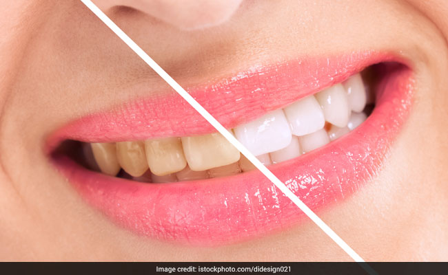 restore-your-pearly-whites-with-home-remedies_650x400_81505218093